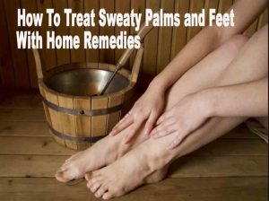 How To Treat Sweaty Palms and Feet With Home Remedies