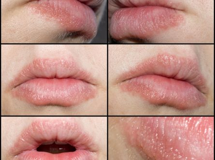 How to treat cracked or dry lips with homemade scrubs