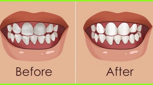 Strengthen You Teeth and Gums With This Natural Home Remedies