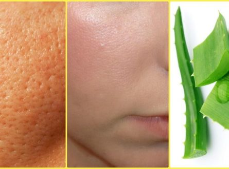 How To Get Rid of a Large Open Pores With Natural Home Remedies