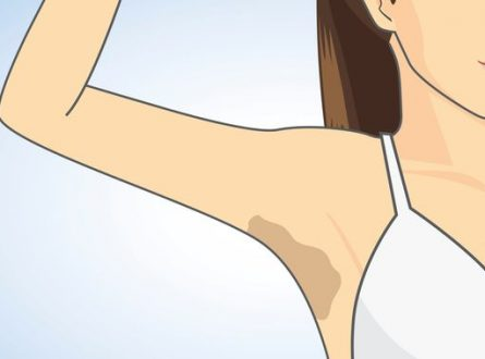 Natural remedies for dark underarms