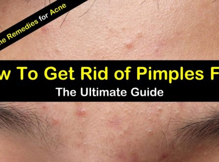 How To Get Rid Of Acne - Acne Treatment