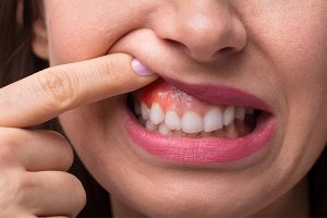 How To Reduce Gum Swelling With Home Remedies