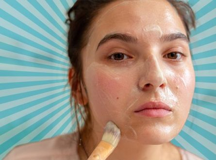 6 Wonderful Home Remedies for Acne